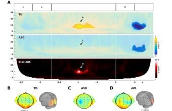 [PAPER] La actividad oscilatoria cerebral reflejar alteraciones de memoria en pacientes con autismo
