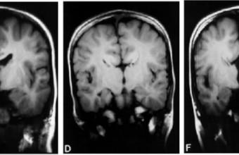 Expectativa paradójica: actividad cerebral oscilatoria e interacción social en esquizofrenia